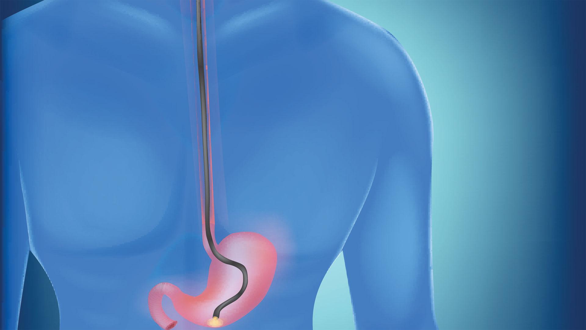 endoscopy2