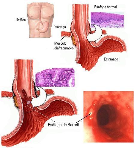 esofago de barrett